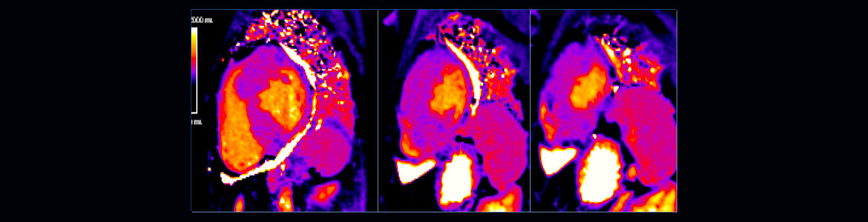 Cardiac-T1-mapping